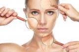 Cómo detectar el cáncer de piel